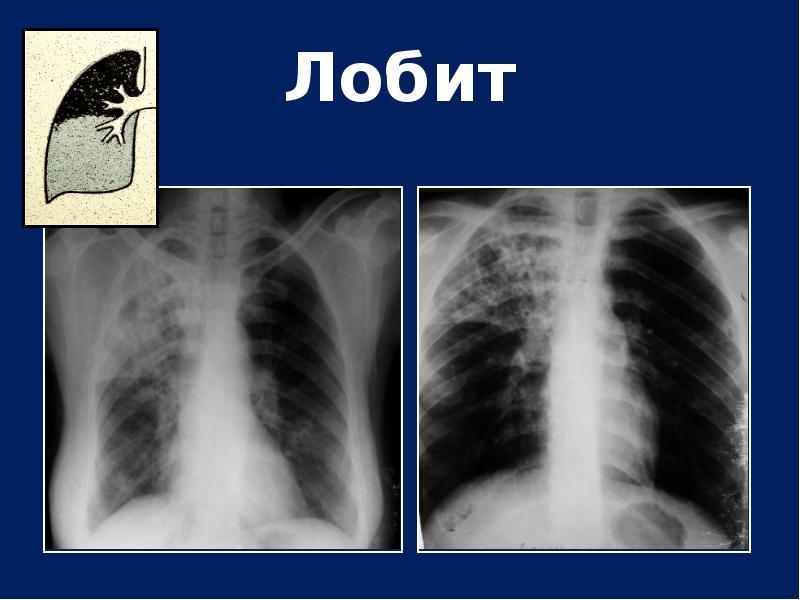 Туберкулезный лобит
