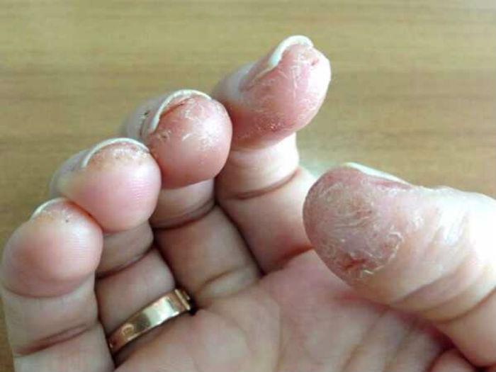 Выраженная аллергия на гель-лак