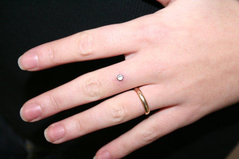 Микродермал-бриллиант на руке