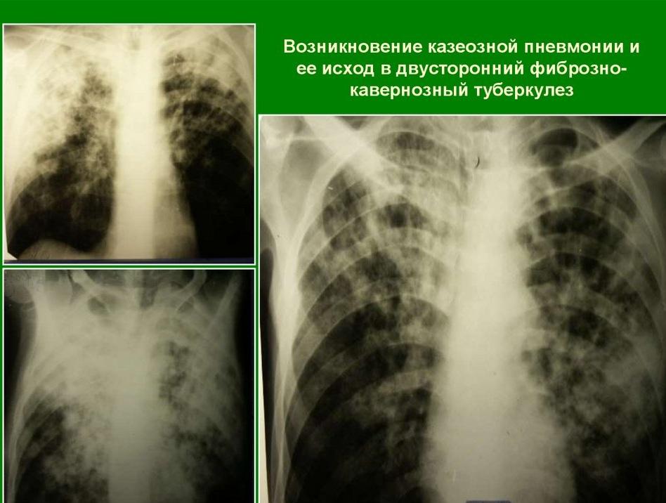 Казеозной пневмонии